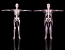 3D renders of two female skeletons one slim and one overweight