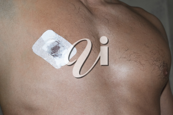 Bactericidal adhesive tape on the male nipple. Dressing after surgery on the nipple areola.